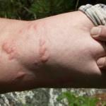 Allergische Reaktion auf Ameisensäure